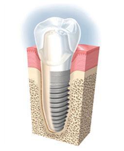 implanty-zakowski